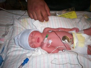 A very small newborn, with lots of cords and wires all over her.