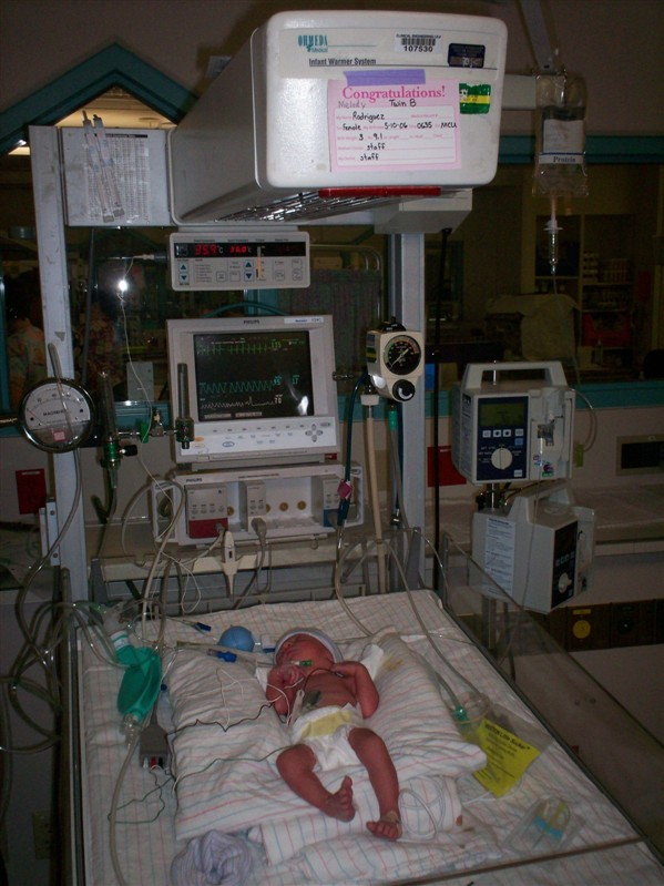 Twin B in the NICU, NICU Story, from hdydi.com