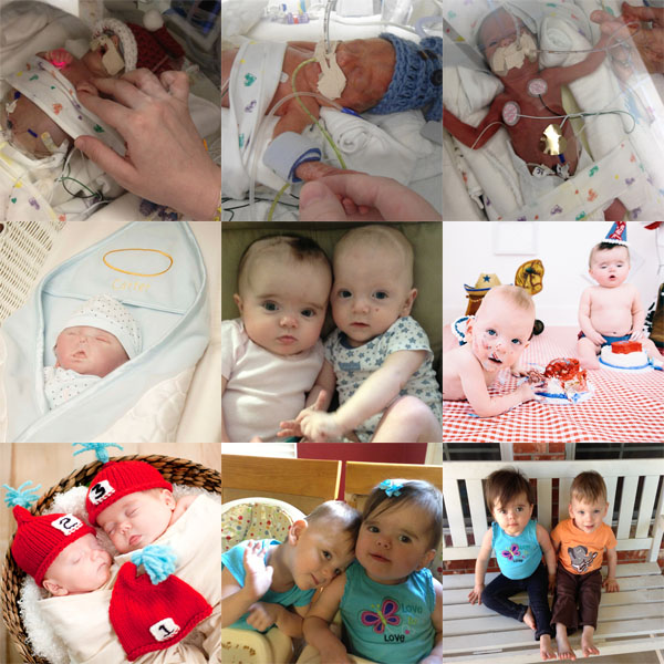 Angela's triplets were born at 27 weeks and 5 days after a month of hospital bed rest. They weighed a little over 2 pounds each. Carter only lived 49 days and Braden & Tenley came home after 4 and 3 months. They fought through L3/4 brain bleeds, shunts, NEC, seizures, sensory issues, feeding issues and GERD, and still have ongoing therapy. In the end though, Angela feels blessed and is very proud of how far her little preemies have come.