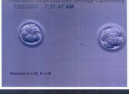 Perfect embryos ready for transfer.