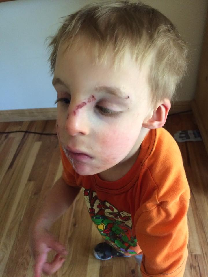 A, who uses a walker to get around, was injured in a wood chip covered playground, which is not accessible.